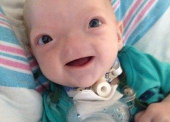 Знайомтесь з Еллі, дитиною що народилась без носа