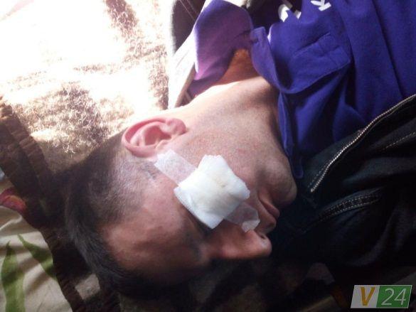Через побиття волинських журналістів поліція відкрила кримінальну справу